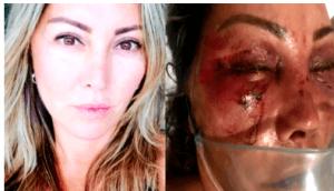 aaa 300x172 - Mulher é espancada por quase quatro horas em primeiro encontro com agressor - o tempo jornalismo