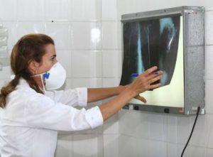 IMAGEM NOTICIA 5 2 3 300x221 - Tuberculose mata 4,5 mil pessoas diariamente no mundo, alerta OMS - o tempo jornalismo