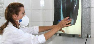 Tuberculose mata 4,5 mil pessoas diariamente no mundo, alerta OMS