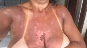 Quei 300x167 - Itabuna: Mulheres denunciam clínica por queimaduras - o tempo jornalismo
