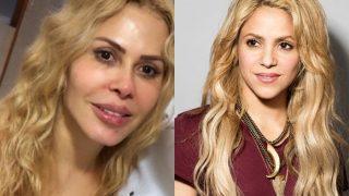 Joelma faz harmonização facial e internautas comparam cantora a Shakira