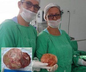 EF193E88 87B6 4D94 8663 A633DA193B22 e1558475758793 300x252 - Lavrador tem pedra de 1,3 Kg e 18 cm retirada da bexiga em cirurgia na Bahia - o tempo jornalismo