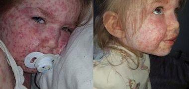 Mãe faz alerta sobre doença que se parece com catapora, mas é bem mais grave